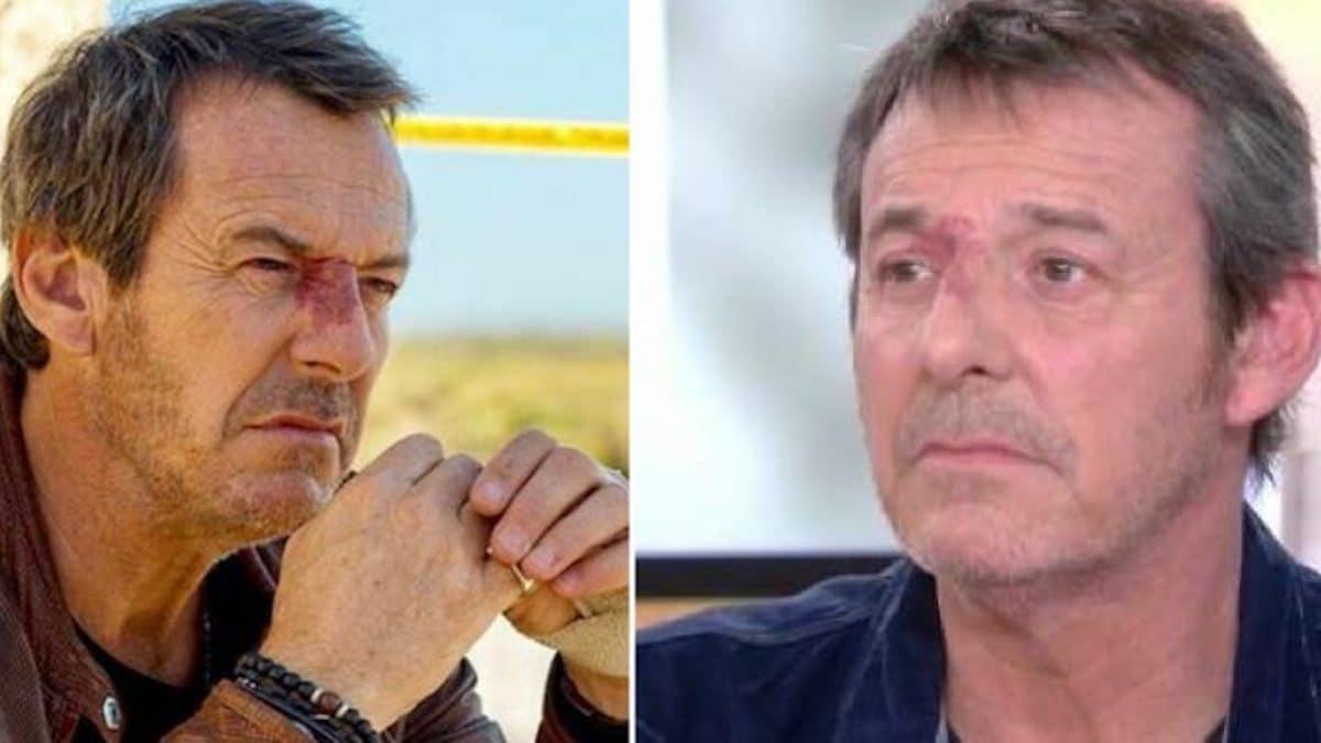 Jean-Luc Reichmann très mal: Soigné d'urgence en plein confinement