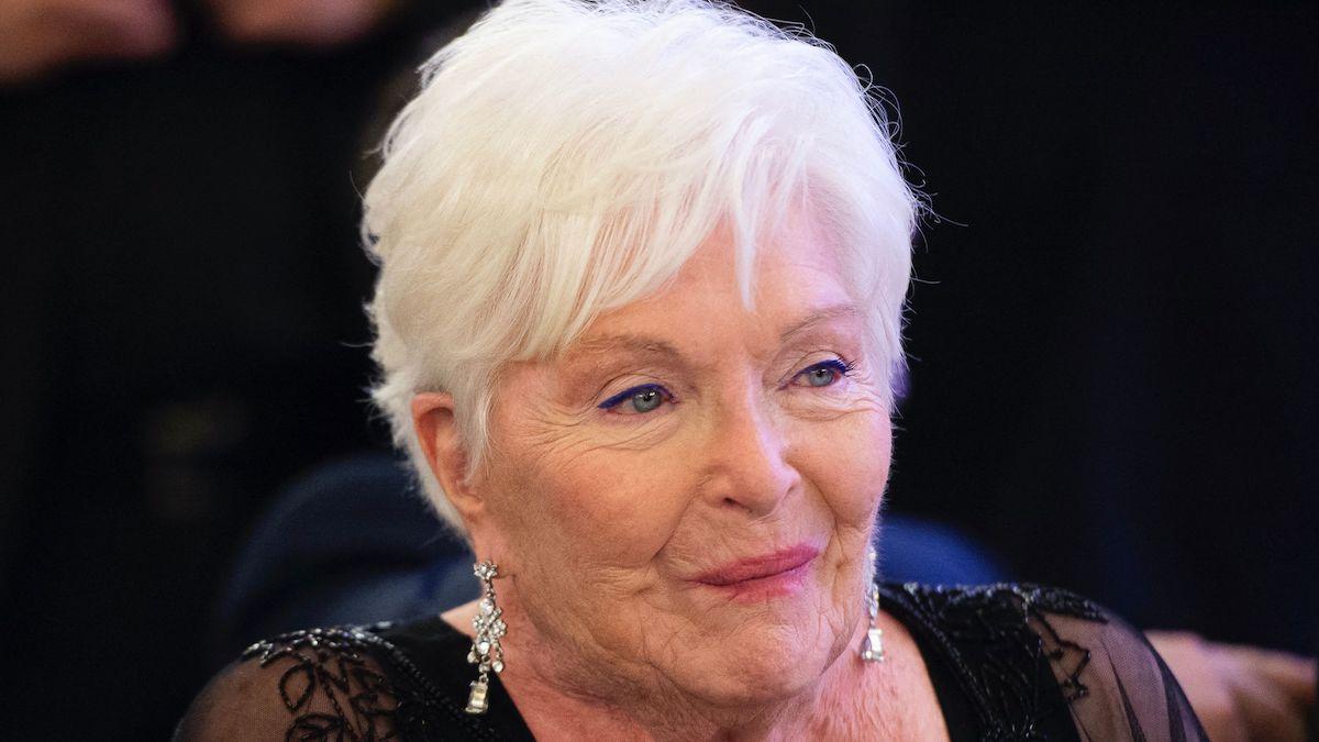 Line Renaud victime d'un AVC : les choquantes et terrible révélations sur la chanteuse