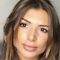 Maeva Martinez : trop de chirurgie, lèvres (trop ?) refaites, elle répond cash et dévoile tout!